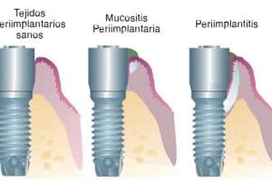 Mucositis y periimplantitis en implantes dentales