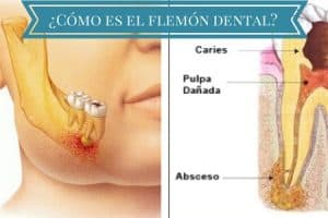 como es flemon dental