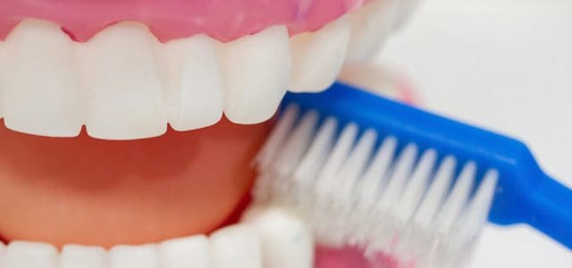 Profilaxis dental