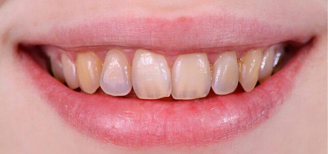 Erosión en los dientes