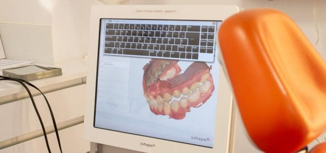 Escáner intraoral 3D