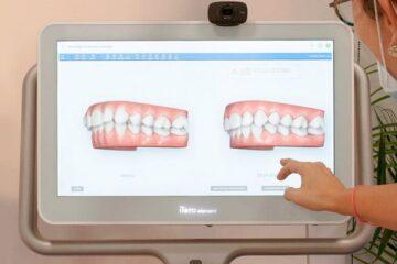 iTero Element: el escáner intraoral en 3D para ortodoncia