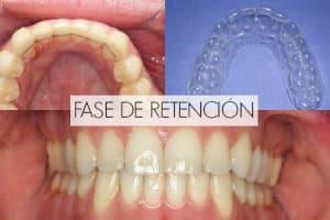 ortodoncia retencion fase