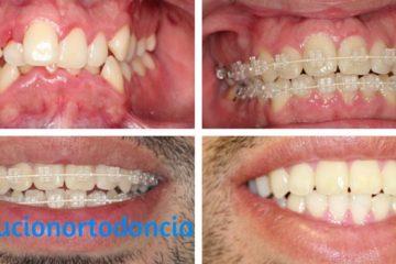 proceso de ortodoncia brackets