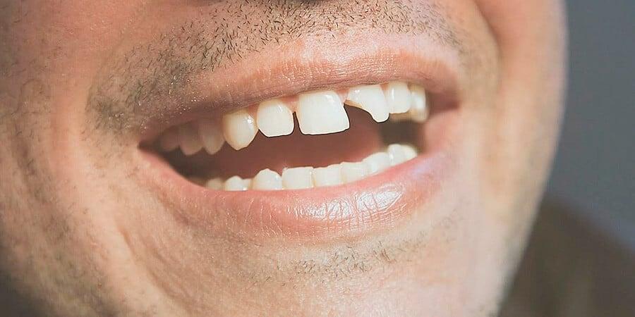 la pérdida de peso puede causar dentaduras sueltas
