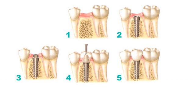 La prótesis se coloca por fases