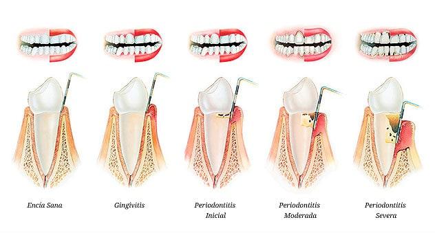 Fases de desarrollo de periodontitis