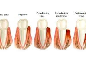 Encías enfermas por gingivitis o periodontitis