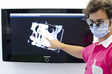 Colocación de implantes por Jorge Ferrús
