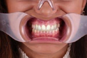 Sonrisa con separadores
