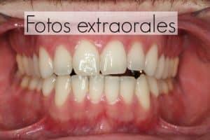 ortodoncia mordida