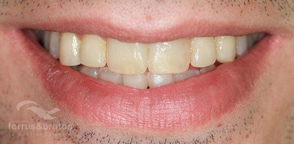 Caso de éxito con blanqueamiento dientes de fumador