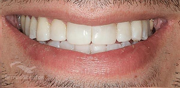 Caso de éxito con blanqueamiento dental dientes amarillos de fumador