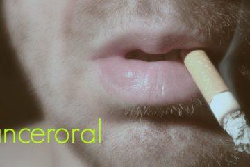sintomas cancer boca