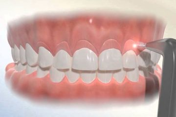 Cirugía periodontal: gingivectomía