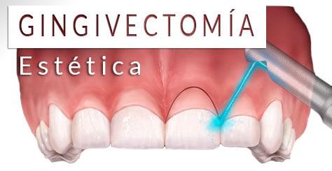 Gingivectomía estética