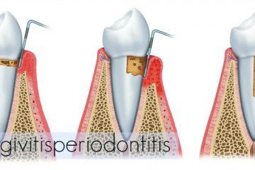 gingivitis periodontitis tratamiento