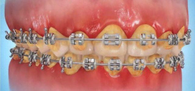 Higiene con ortodoncia