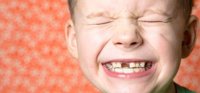 Golpe en un diente