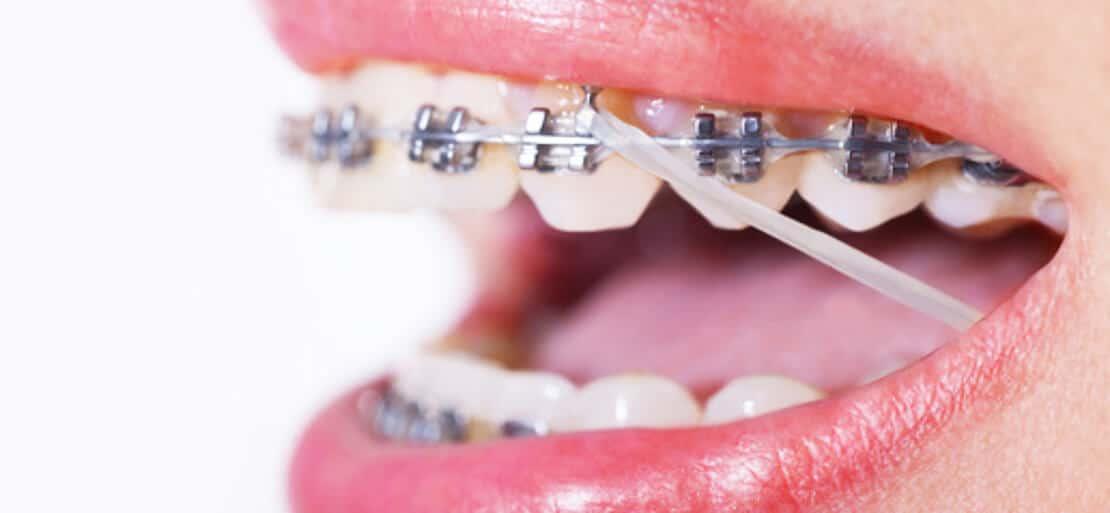 Gomas Para Brackets En Ortodoncia Qué Son Ferrus Bratos