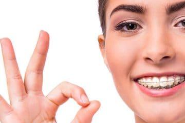Elásticos intermaxilares durante la ortodoncia: qué son y para qué se usan