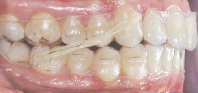 Gomas de ortodoncia en Invisalign