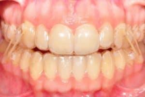 Cómo colocar gomas en la ortodoncia invisible