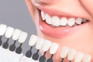 Escala de color para los dientes