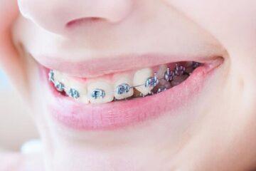 ¿Afectarán la ortodoncia y los brackets a mi forma de hablar?