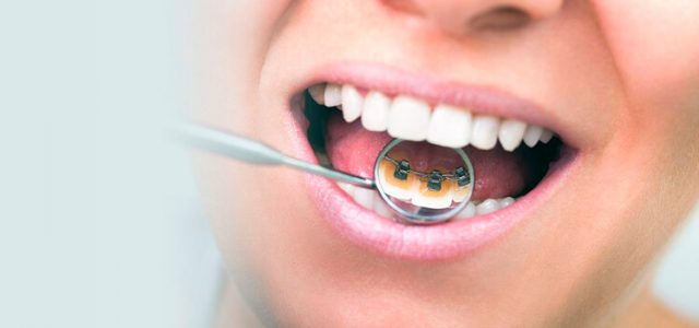 Brackets e higiene dental