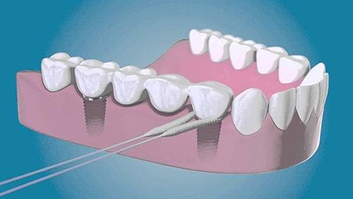 higiene con implantes dentales