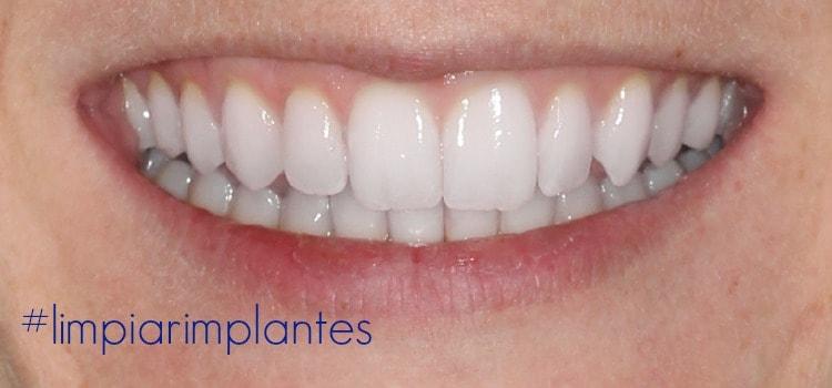 ¿Cómo limpiar los implantes dentales y cuidar su higiene  9435b4acf820