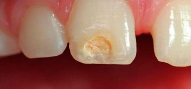 Surco en un diente