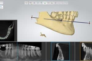Software para estudiar el hueso maxilar