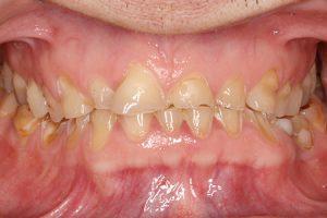 Caso real de desgaste dental