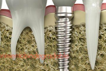 implantología oral avance
