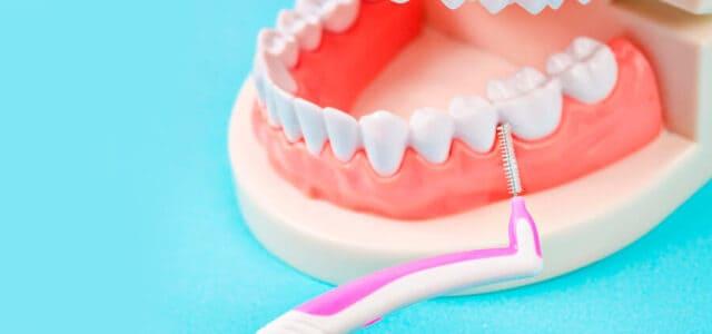 Limpiar los implantes dentales