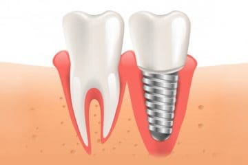 Gingivitis de los implantes