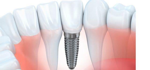 No hay diferencia estética entre un diente y un implante