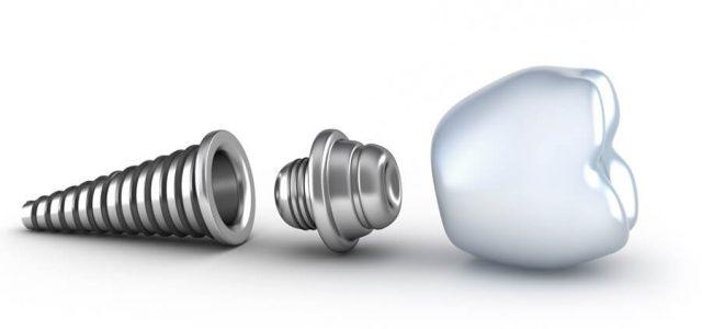 Composición de un implante dental