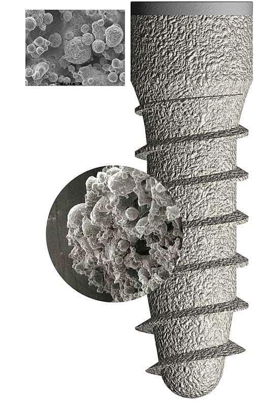 Integración del hueso con el implante