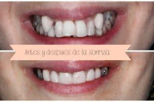 mplante dental corona provisional