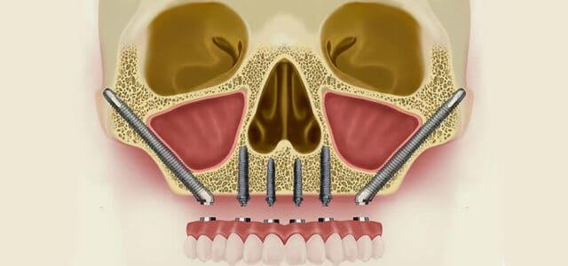 Implantes cigomáticos técnica