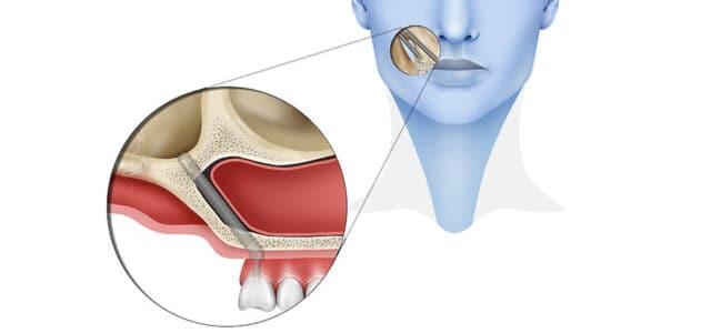 Implantes cigomáticos inconvenientes