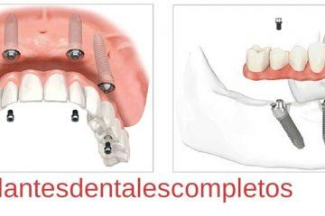 implantes dentales en bocas desdentadas