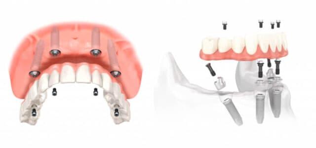 Colocación de implantes dentales