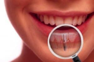 Tabaco perjudica los implantes dentales