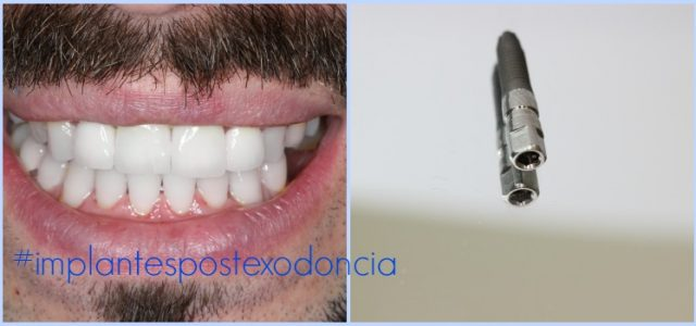 implantes dentales extraccion