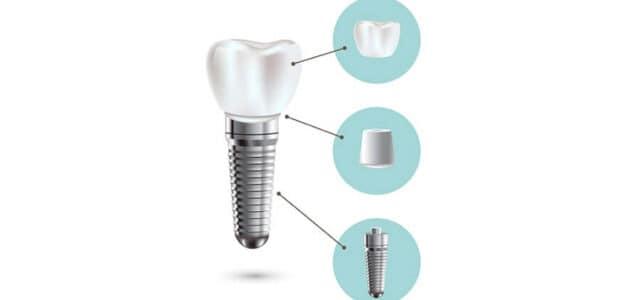 Implantes dentales Straumann