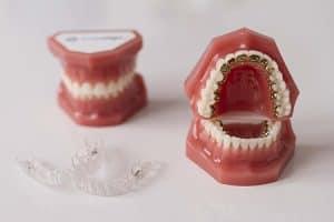 Ortodoncia Invisalign e Incognito